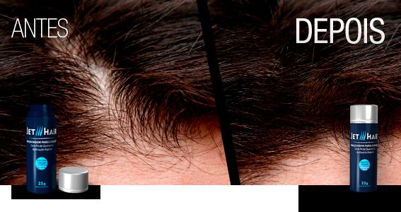 como-esconder-careca-como-disfarcar-calvicie-moda-sem-censura-blog-de-moda-masculina-blogger-youtuber-jet-hair-cabelo-masculino-esconder-entradas-haircut-hairstyle-mens-grooming-2
