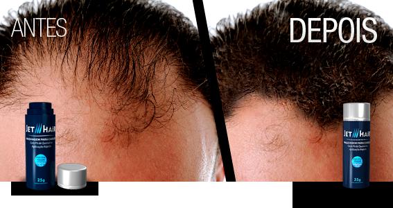 como-esconder-careca-como-disfarcar-calvicie-moda-sem-censura-blog-de-moda-masculina-blogger-youtuber-jet-hair-cabelo-masculino-esconder-entradas-haircut-hairstyle-mens-grooming-3
