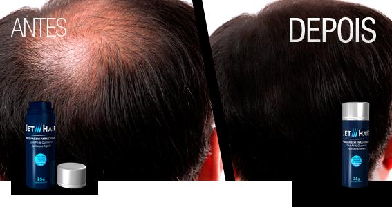 como-esconder-careca-como-disfarcar-calvicie-moda-sem-censura-blog-de-moda-masculina-blogger-youtuber-jet-hair-cabelo-masculino-esconder-entradas-haircut-hairstyle-mens-grooming-4
