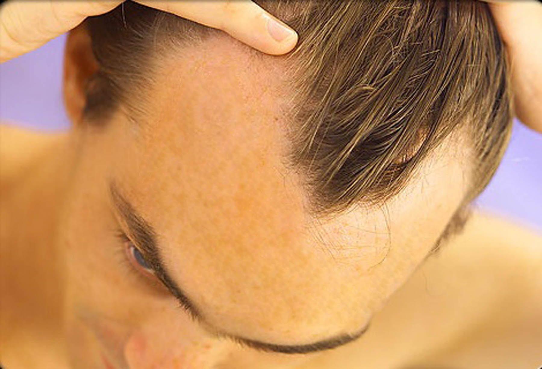 Resultado de imagem para cabelos com calvice